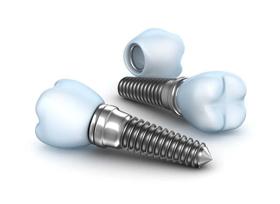 Implants Straumann