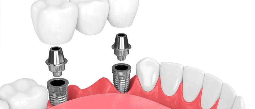 Prótesis dental fija: todos los tipos, ventajas y mantenimiento