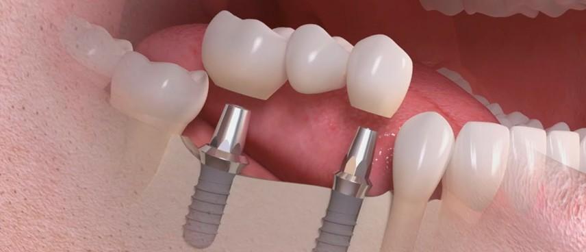 Prótesis implantosoportadas: Tipos y mantenimiento