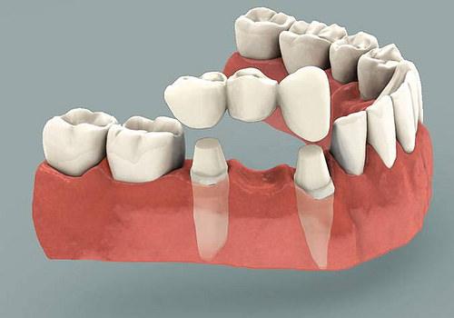 Signos y síntomas periodontitis