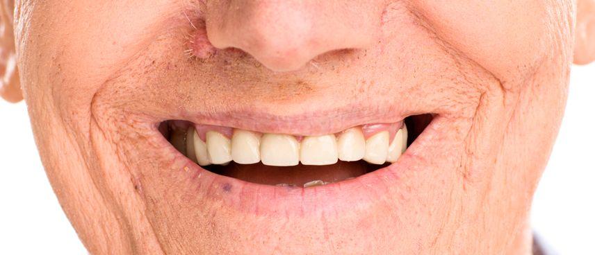 Tap de cicatrització dental