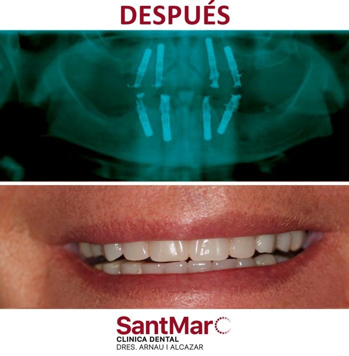Antes y después implantes dentales carga inmediata