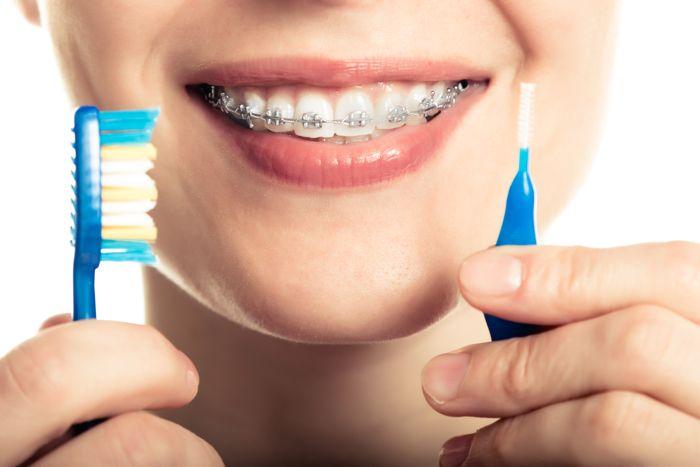 Higiene dental con brackets