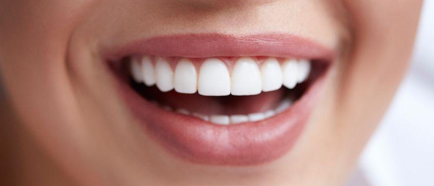 Carillas dentales y cómo conseguir una sonrisa perfecta en 24h