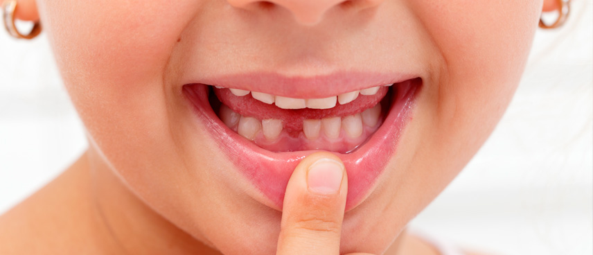 Agenesia dental, ¿qué es y cómo tratarla?