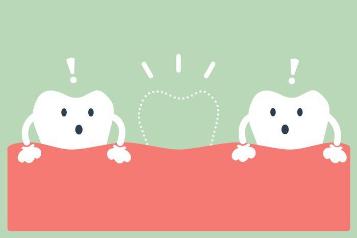 Consecuencias agenesia dental