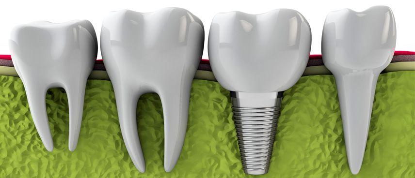 Straumann ¿por qué son los mejores implantes dentales?