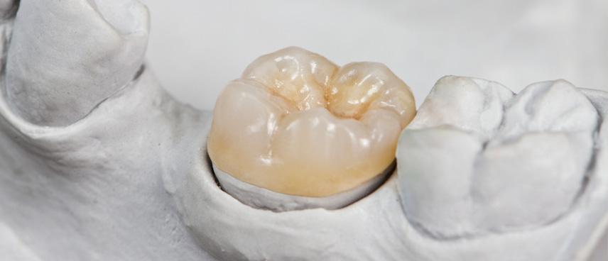 Què és una incrustació dental i quan es realitza?